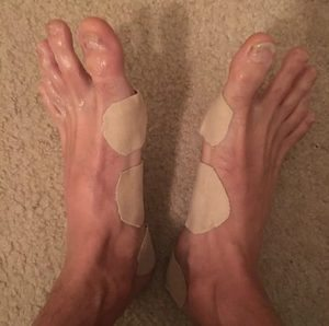 blistered-feet-from-running-a-race
